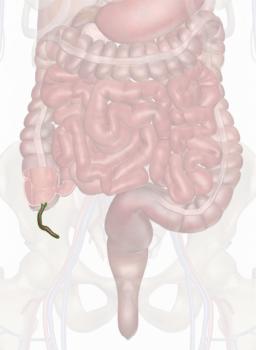 التهاب آپاندیس شکل