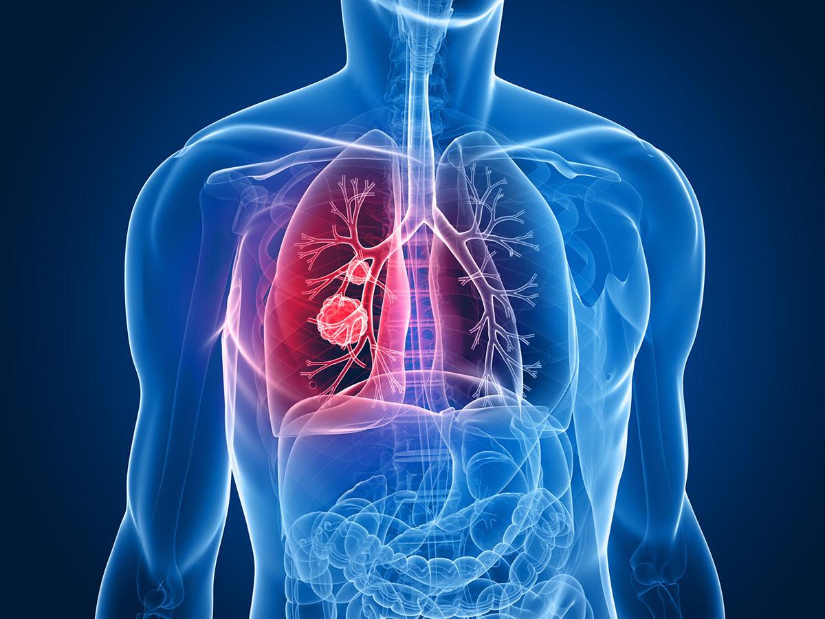 بیماری انسدادی مزمن ریه و  ۷ راه برای افزایش وزن در بیماران مبتلایان به این بیماری
