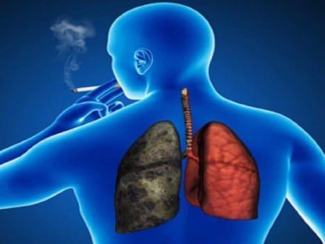 بیماری انسدادی مزمن ریه و سیگار