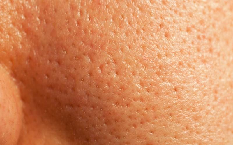 استفاده از پاک کننده ملایم باعث کوچک شدن روزنههای پوستی می شود