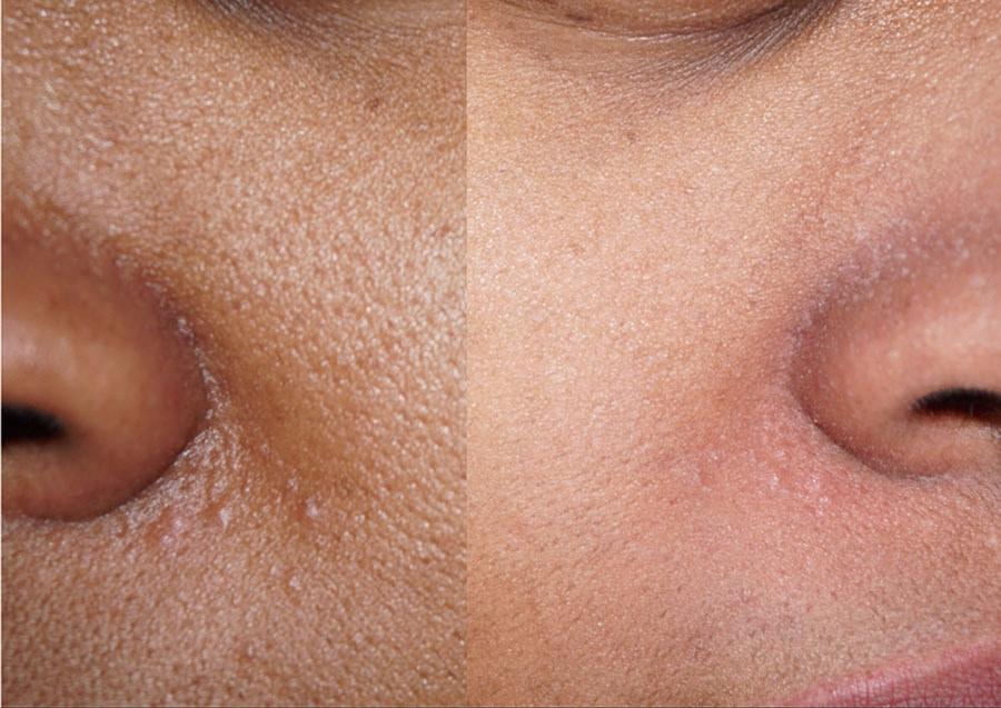 بخور دادن به تمیز کردن روزنههای پوستی کمک می کند