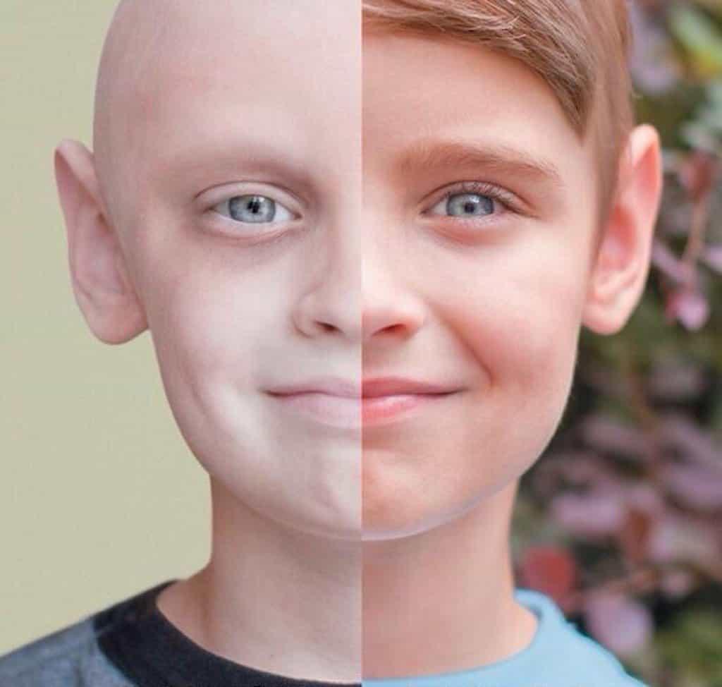 سرطان ملانوم