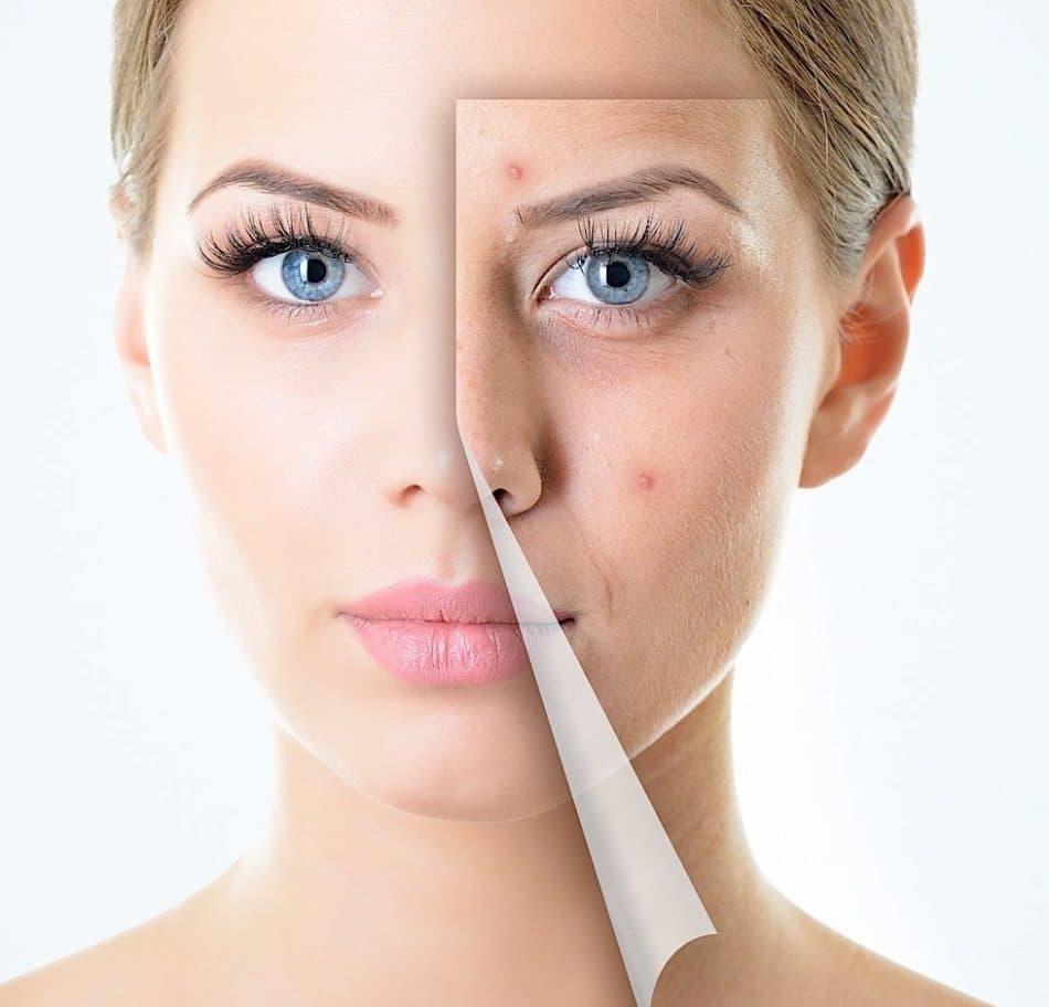 روش های داشتن پوست سالم