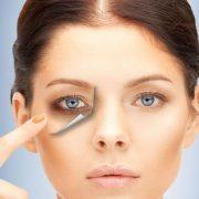 تیرگی زیر چشم ، علل اصلی پیدایش و روشهای درمان آن
