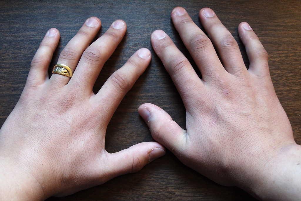 ورم انگشتان