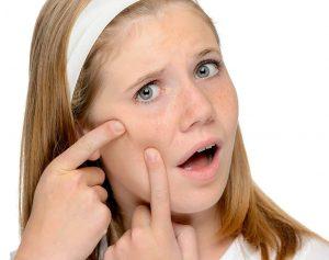 برنامههای مراقبتی پوست در دوران نوجوانی