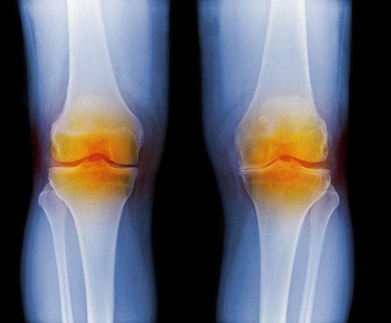 خواص پیچک در پیشگیری از آرتریت