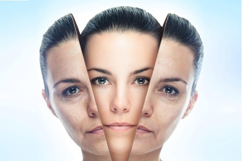 آشنایی با لیزر لایه برداری پوست، کاربردها و عوارض آن در درمانهای زیبایی