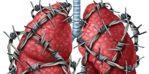 بیماری برونشیت