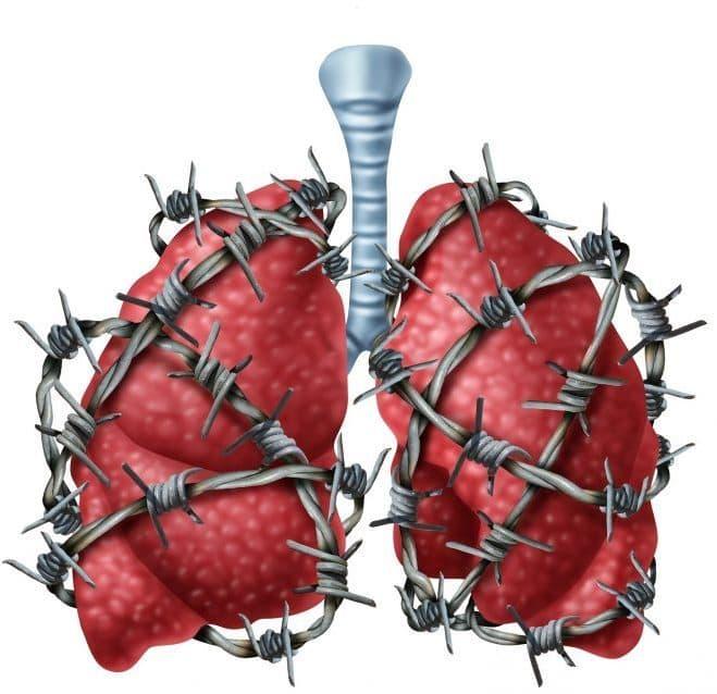 برونشیت و روش های درمان و پیش گیری از این بیماری
