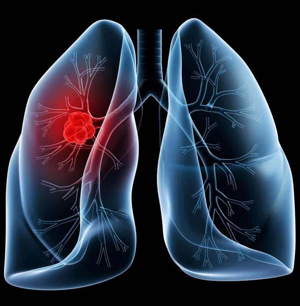 برونشیت و نگاهی به انواع و علائم مربوط به  این بیماری