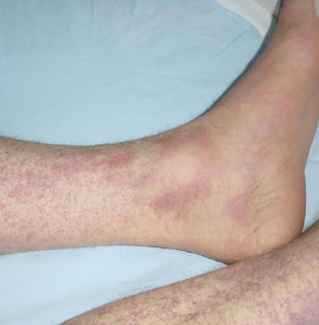 بیماری تب خونریزیدهنده کریمه کنگو