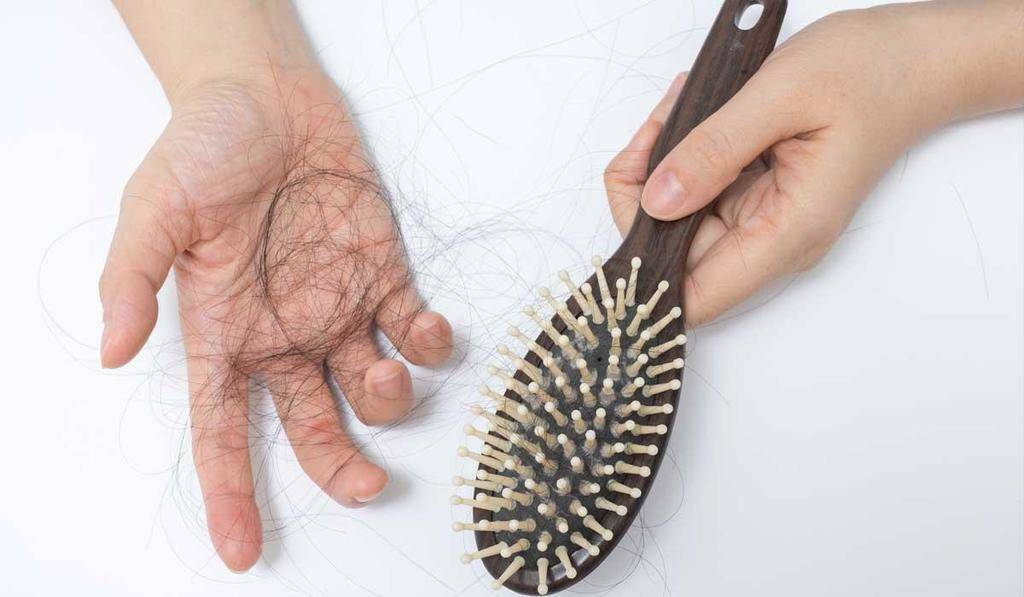 علل ریزش مو در خانمها