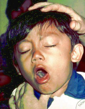بیماری سیاه سرفه