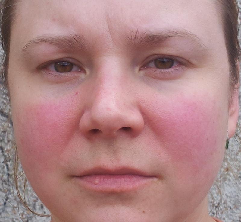 بیماری لوپوس از نشانه های نقص ایمنی اولیه