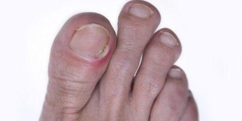 روشهای پیشگیری و درمان عارضه فرورفتن ناخن دست و پا در گوشت