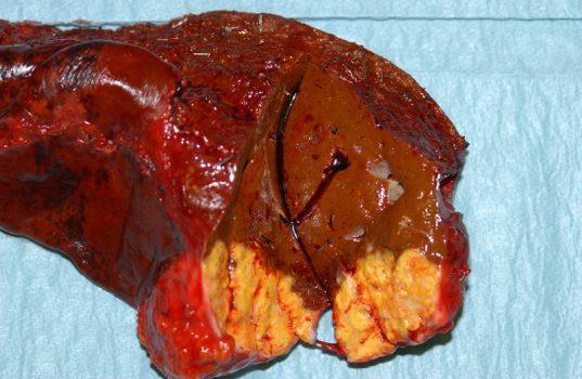 سرطان کبد وکارکرد کبد برای بدن