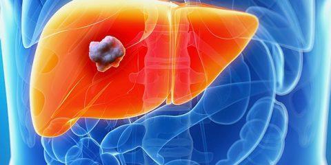 معرفی سرطان کبد