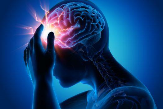 پراداکسا و جلوگیری از سکته مغزی