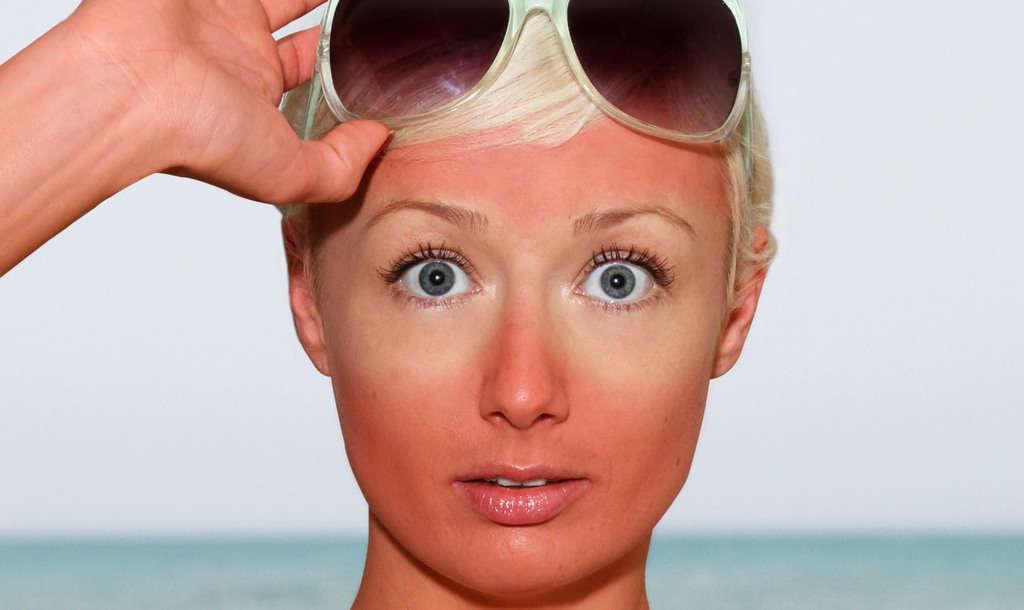 چگونه از آفتاب سوختگی در فصل تابستان جلوگیری کرده و آن را درمان کنیم؟