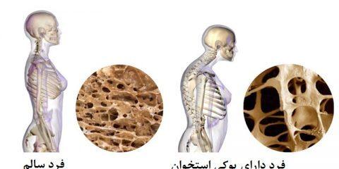 بونیوا برای پوکی استخوان