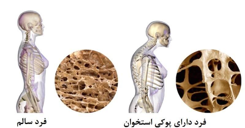 نتیجه تصویری برای پوکی استخوان