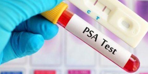آزمایش های غربالگری سرطان