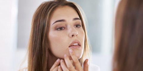 چند درمان خانگی موثر برای این که هرچه سریعتر از شر جوشها خلاص شوید