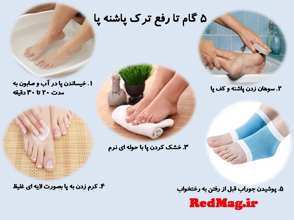 درمان ترک پاشنه پا در 5 مرحله آسان