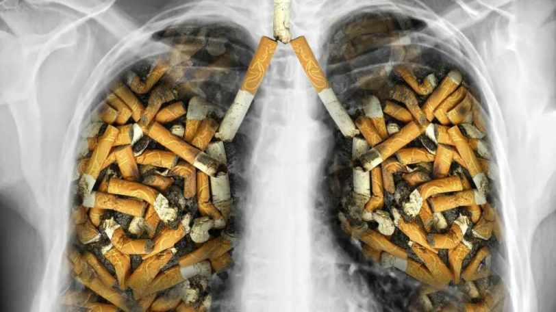 سیگار از عوامل سرطان ریه