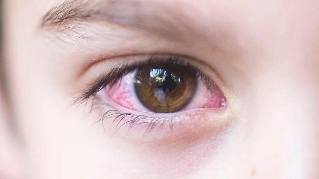 علائم عفونت چشم