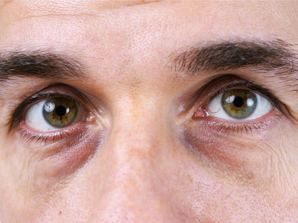 پف زیر چشم نشانه بیماری