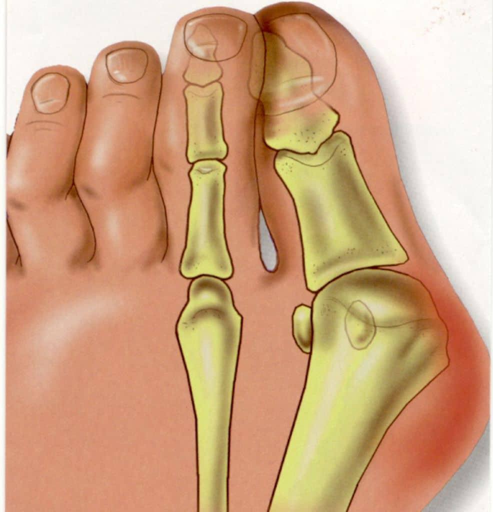 همهچیز در مورد تورم دردناک، در مفصل اولین انگشت پا