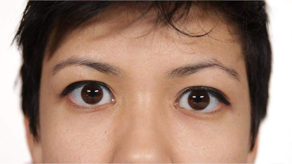 خط چشمان دوپلکه