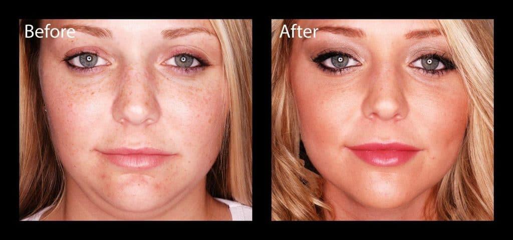 کشیدن پوست