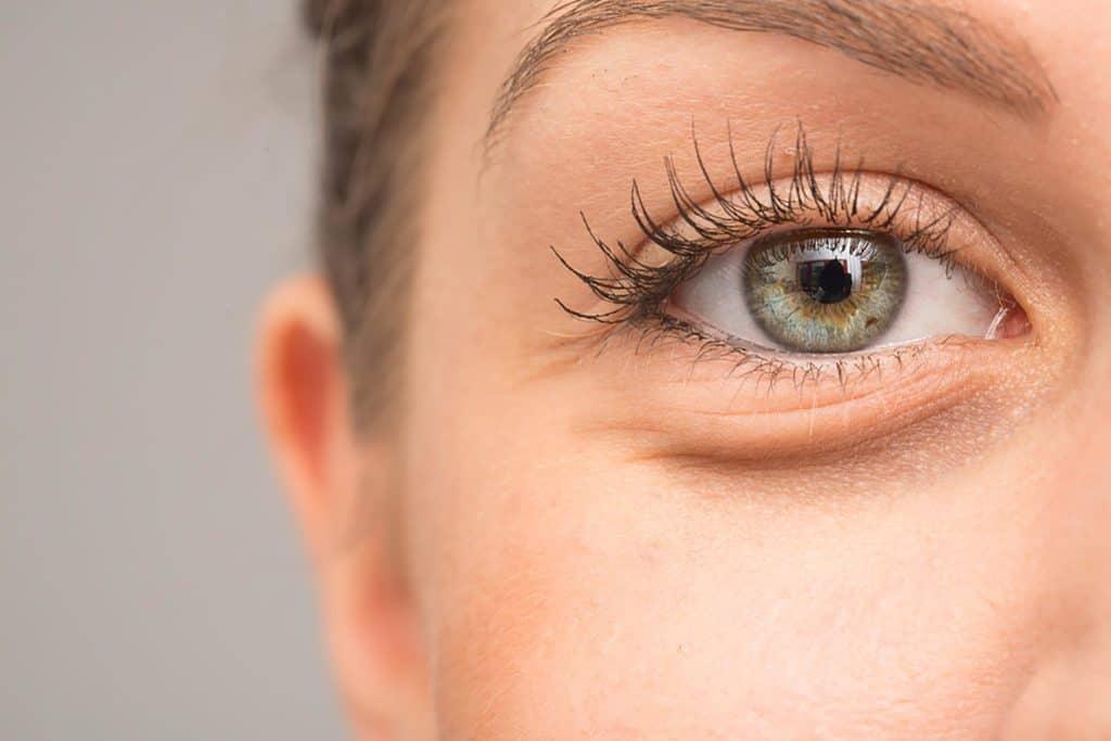 علتهای تیرگی زیر چشم