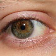 معرفی خشکی چشم