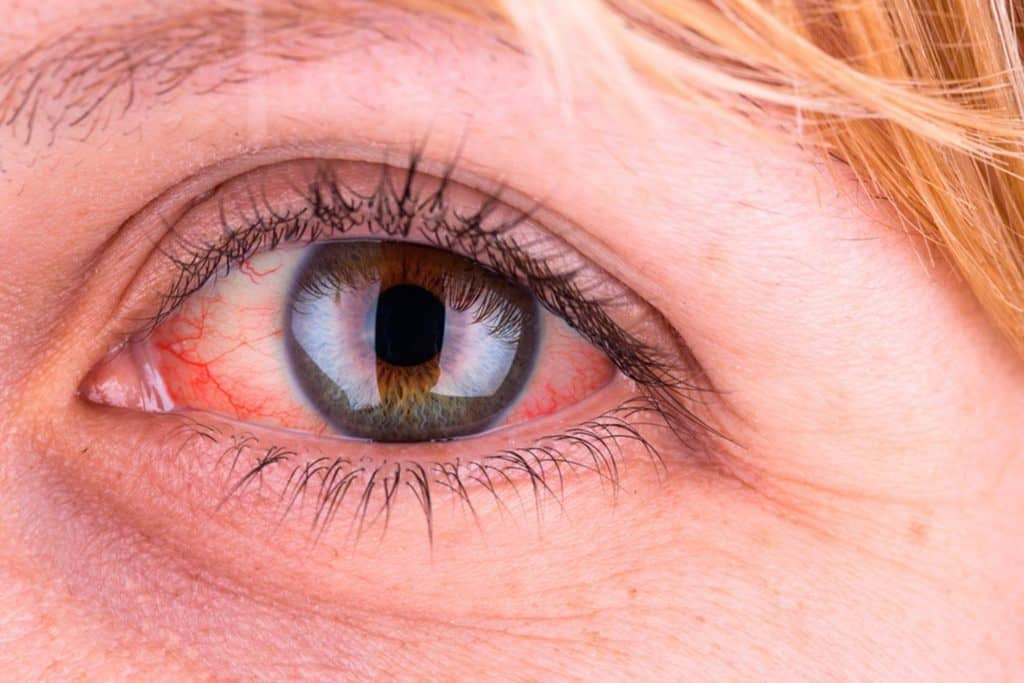 علت زرد شدن چشم