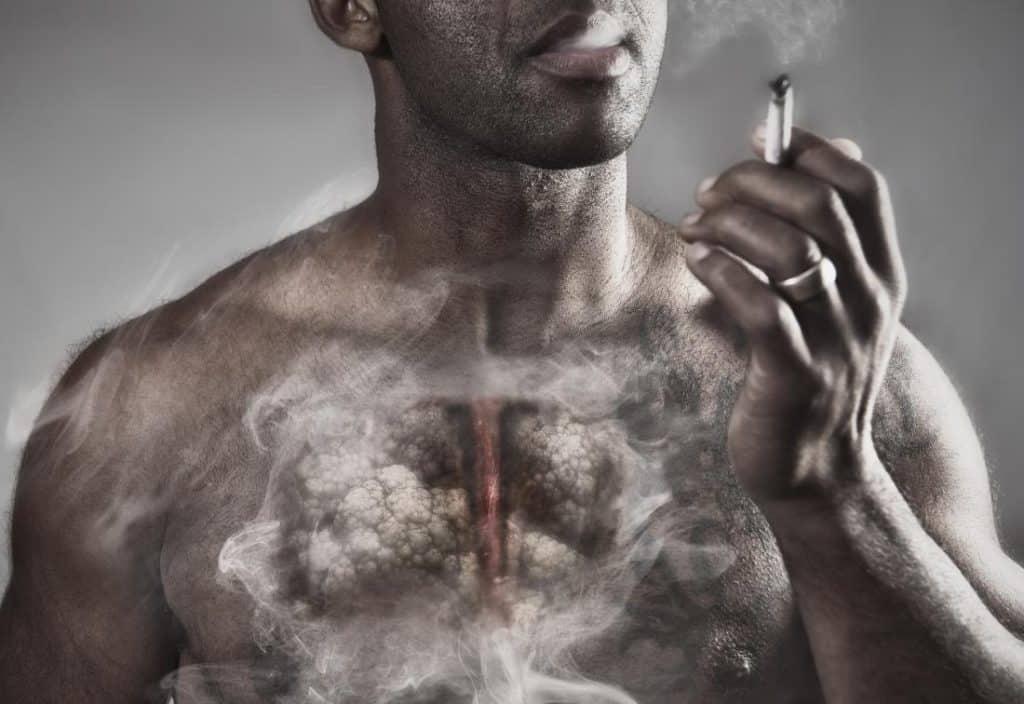 سیگار و نقش آن در بیماری آمفیزم