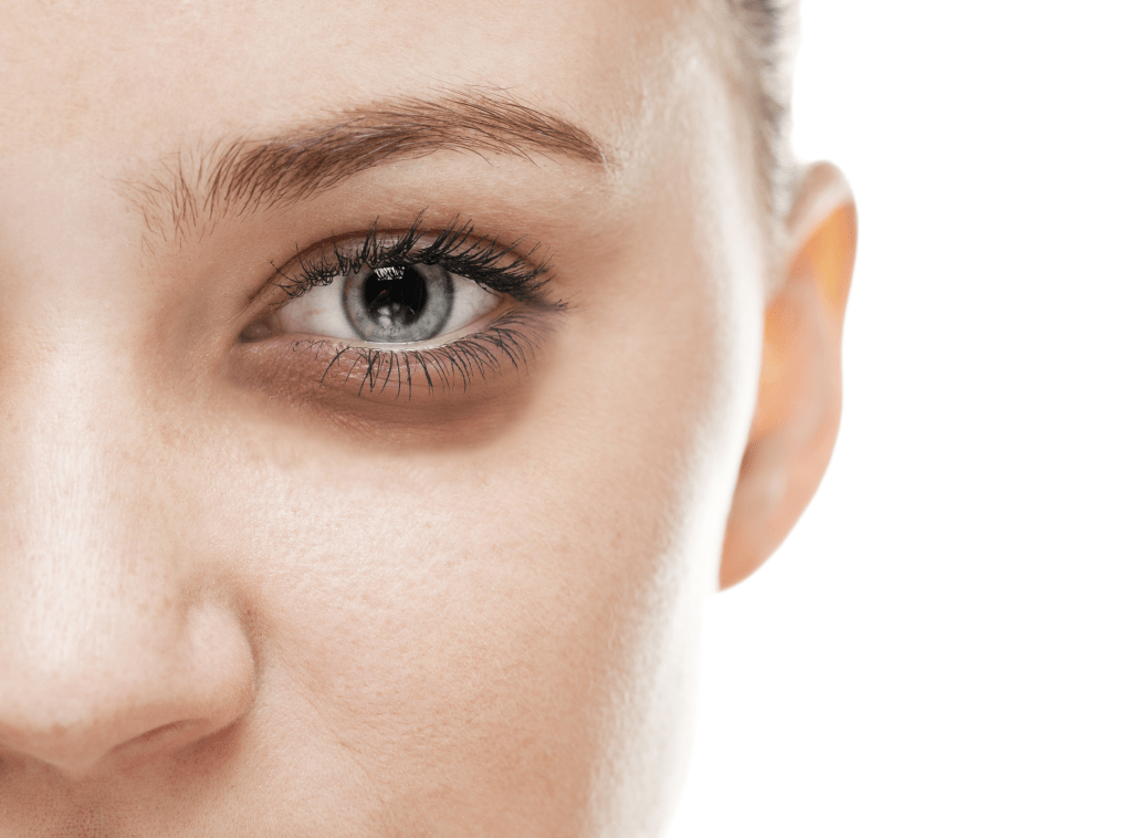 سیاهی زیر چشم به ۹ دلیل شگفت انگیز که پیش از این نمیدانستید