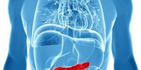 معرفی بیماری التهاب پانکراس