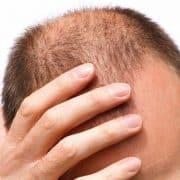 عوامل موثر در رشد مو