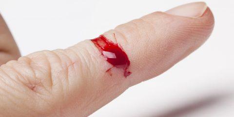 لکه خون را چگونه از روی لباسها و منسوجات پاک کنیم؟