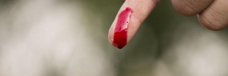 لکه خون