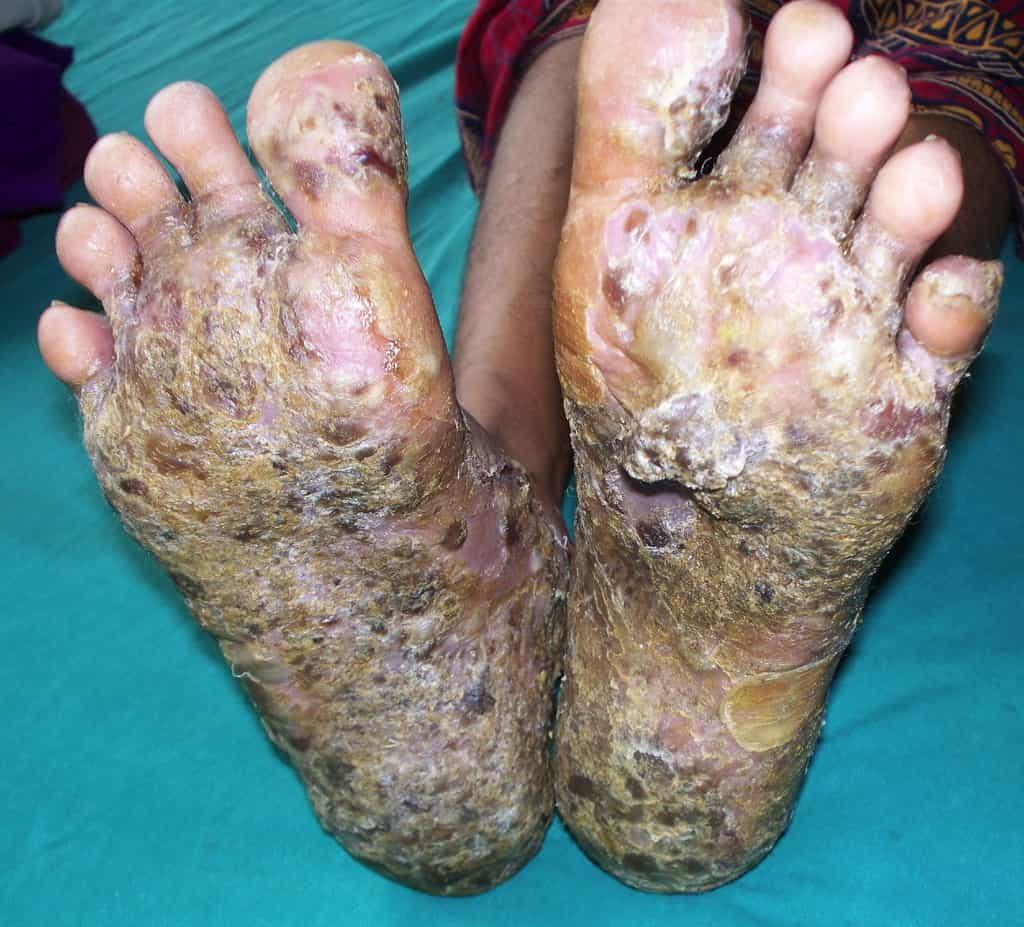 بیماری پمفیگوس: نگاهی جامع به علائم، علل ایجاد، تشخیص و درمان این بیماری