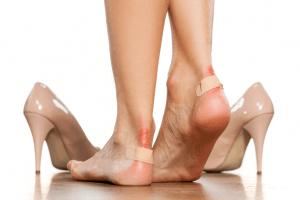 درمان تاول پاشنه پا