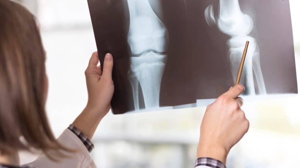 نحوه تشخیص بیماری آرتروز