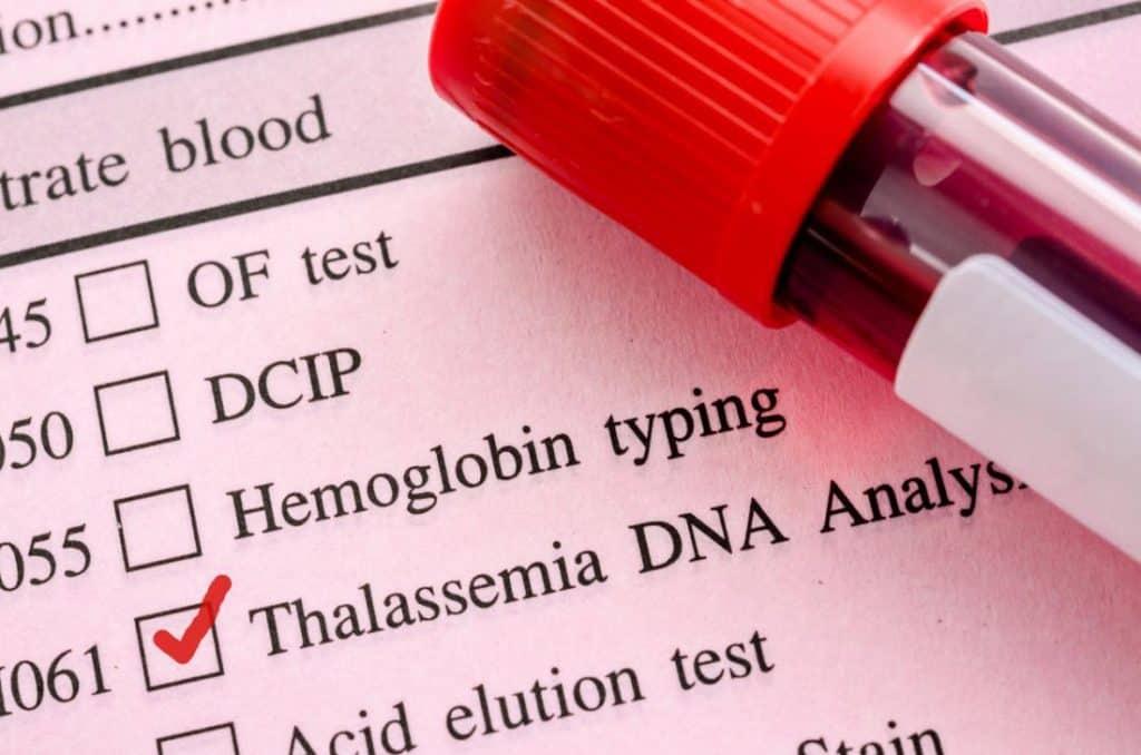 روش های تشخیص بیماری تالاسمی