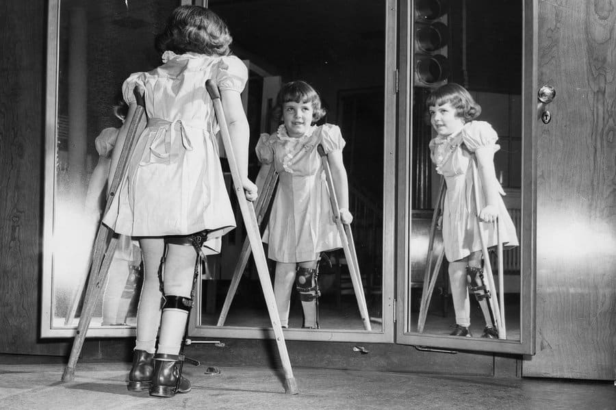 سیر بیماری فلج اطفال