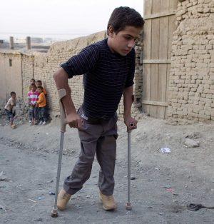بیماری فلج اطفال